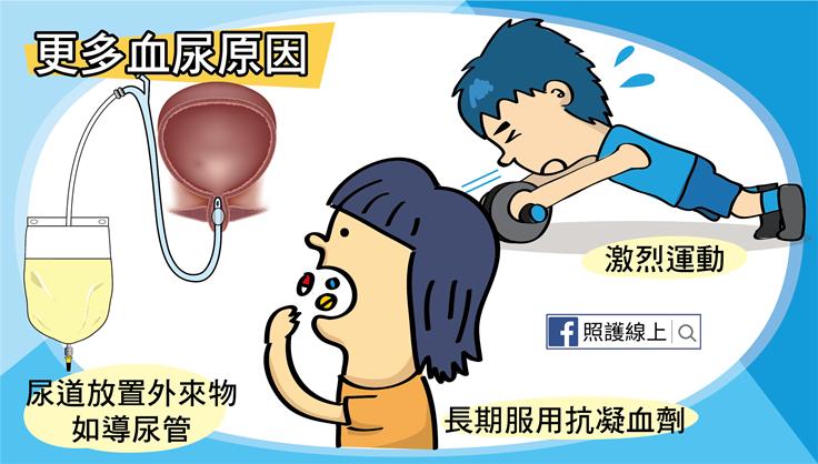 放置 膀胱 炎