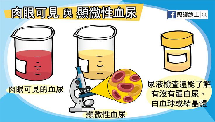 炎 血尿 膀胱